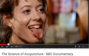 science of acupuncture